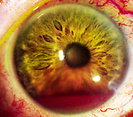 Hyphema or blood in the anterior chamber which often follows blunt trauma.