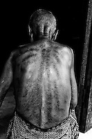 "Borrowed by Cambodians from China Gua aha or ""scraping sha-bruises"" is a traditional treatment  in which the skin is repeatedly scraped to produce bruising. Practitioners believe gua aha releases unhealthy elements from injured areas and stimulates blood flow and healing."