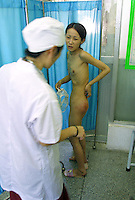 Ah Li, a 21 year-old female drug addict has a body-check in a drug rehabilitation centre in Bao'an, China. Ah Li moved to Shenzhen from northern China when just sixteen years old after the break-up of her family. She was tricked into prostitution and initially forced to take drugs until she became addicted and dependent on her gang bosses.