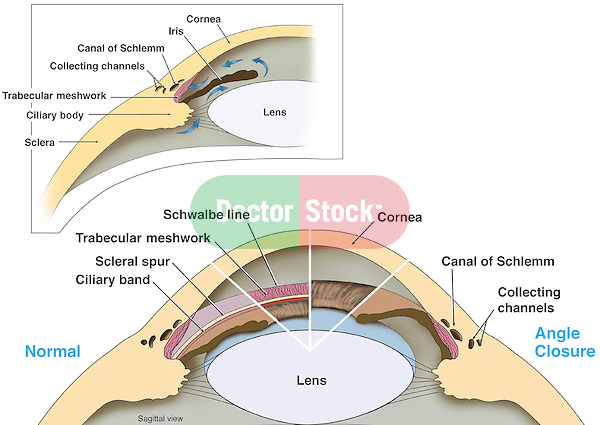 This full color medical illustration chart diagramatically depicts primary glaucoma angle closure vs. normal angle closure in a cut-away version of the eye. Two images depict the anatomy of the front portion of the eye with labels for the cornea, iris, Canal of Schlemm, collecting channels, trabecular meshwork, ciliary body, sclera and lens. The second illustraion contrasts a normal angle closure in the region of the iris and angle closure from glaucoma.