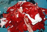A large pile of bloodied surgical swabs accumulated during the course of a procedure. Royalty Free
