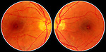 Color retinal images of the right and left eyes with solar maculopathy.