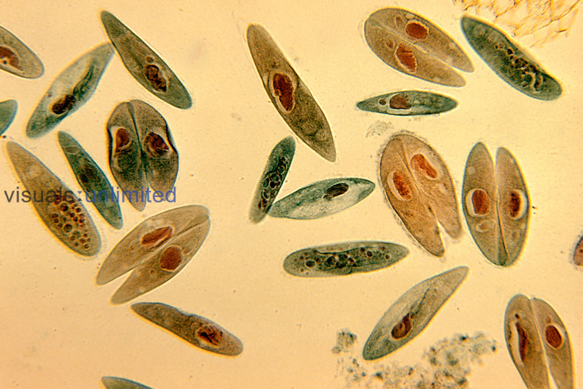 Paramecium caudatum Ciliate Protozoa with some in conjugation. LM X44.