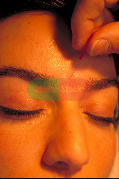 acupuncturist inserting needles into female patient's face