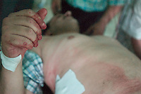 a wounded iraqi is being treated at the Iarmuk hospital on May 31 2004, in the outscorts of Baghdad. the blast that wounded him  claimed to damege the road near the judgement consular. the number of casualties is uncertain but is not less then three