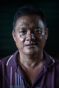 51 year old Goh Kuam Boon, a former pig farmer and a  survivor of the Nipah virus poses for a portrait in the kitchen of their house in Bukit Pelandok in Nageri Sembilan, Malaysia on October 16th, 2016. <br /> In September 1998, a virus among pig farmers (associated with a high mortality rate) was first reported in the state of Perak in Malaysia. Dr. Chua investigated and discovered the virus and it was later named, Nipah Virus. The outbreak in Malaysia was controlled through the culling of &gt;1 million pigs.