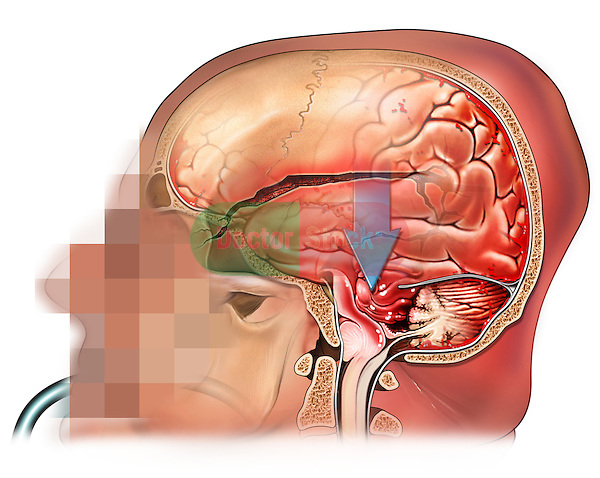 This stock medical image features a left side view of the head of a white male revealing a skull fracture, brain injury and uncal herniation.