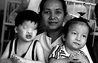 Ho Chi Minh City / Vietnam.<br /> Tu Du Hospital, centro per l'assistenza e la cura dei bambini nati con gravi malformazioni a causa della sindrome da agent orange.A sinistra nella foto il piccolo Tran Huynh Thuong di 4 anni, nato senza occhi e con gravi menomazioni al sistema nervoso centrale.<br /> Foto Livio Senigalliesi.<br /> Tu Du Hospital - Ho Chi Minh City / Vietnam.Consequenses of the war in Vietnam 40 years later.On the left in the picture Tran Huynh Thuong (4) born in the village Sa Thay, one of the places most contaminated by the deadly herbicide.<br /> Photo Livio Senigalliesi
