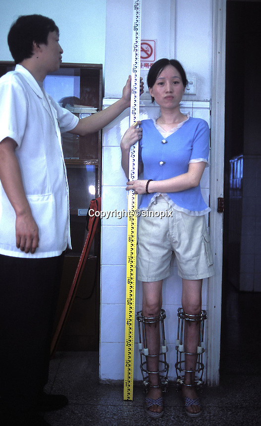 Soong Ling has her legs measured by Dr Zhang at hospital in Guangzhou. The legs are stretched using a metal cage. The patients must wait for around 6 months in bed. Soong Ling's height, after 10 weeks had incresed by around 5 cm...PHOTO BY SINOPIX
