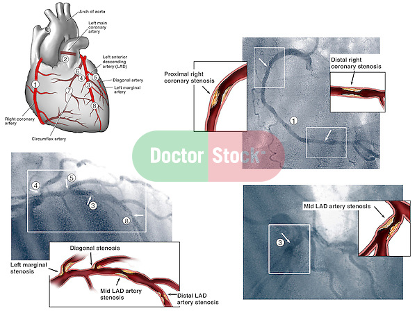 Heart - Coronary Arteries with Angiogram Films.