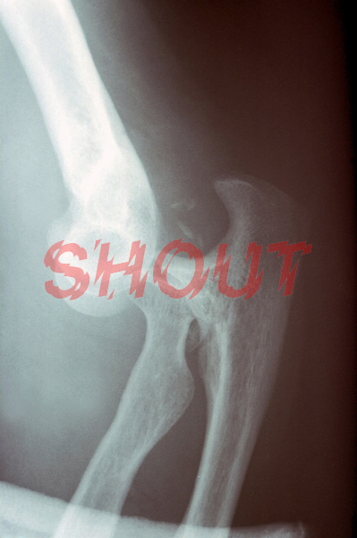 An x-ray of a dislocated elbow. This image may only be used to portray the subject in a positive manner..©shoutpictures.com..john@shoutpictures.com