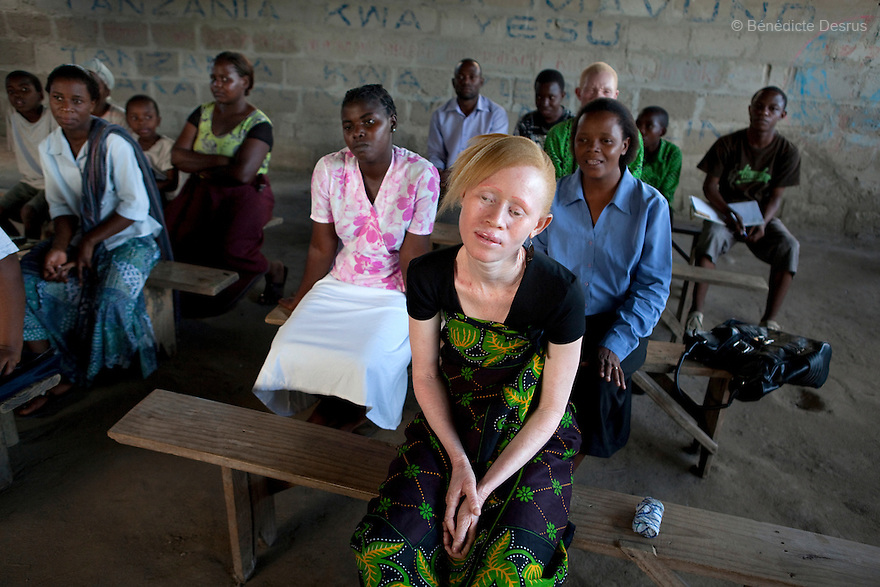 June 26, 2010 - Dar Es Salaam, Tanzania - Janette Anatoli, a 27 year old Tanzanian albino attends a church service at the Tanzania Assembly of Gods church in Dar Es Salaam. Tanzania is believed to have Africa' s largest population of albinos, a genetic condition caused by a lack of melanin in the skin, eyes and hair and has an incidence seven times higher than elsewhere in the world. Over the last three years people with albinism have been threatened by an alarming increase in the criminal trade of Albino body parts. At least 53 albinos have been killed since 2007, some as young as six months old. Many more have been attacked with machetes and their limbs stolen while they are still alive. Witch doctors tell their clients that the body parts will bring them luck in love, life and business. The belief that albino body parts have magical powers has driven thousands of Africa's albinos into hiding, fearful of losing their lives and limbs to unscrupulous dealers who can make up to US$75,000 selling a complete dismembered set. The killings have now spread to neighboring countries, like Kenya, Uganda and Burundi and an international market for albino body parts has been rumored to reach as far as West Africa. Photo credit: Benedicte Desrus
