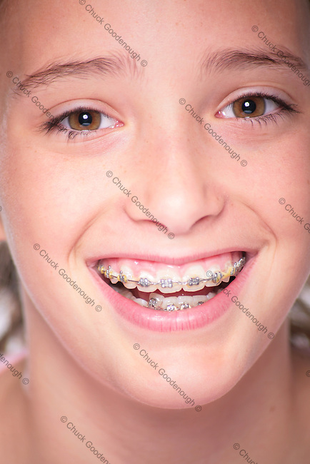 Tight Photo Portrait of the face of a Beautiful Young Girl with Braces
