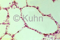 CZ18-003c  Lung Tissue - air sacs (aveoli) normal  250x