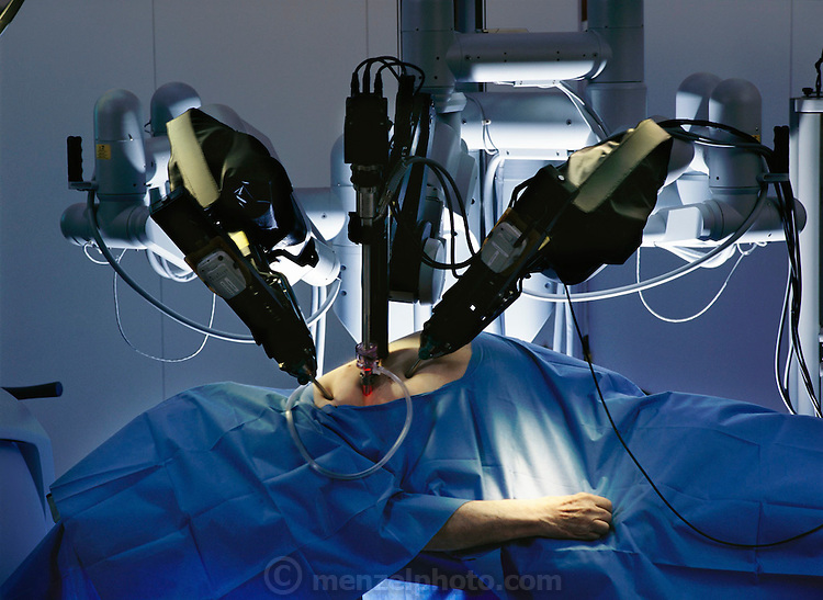 Precision robot arms maneuver microsurgical instruments through centimeter-long holes into the heart of a cadaver in a demonstration of minimally invasive surgery at Intuitive Surgical of Mountain View, California. The whole ensemble: console, tools, and operating table, was developed by the Stanford Research Institute in Menlo Park, CA, a nonprofit R&D center created by Stanford University. The system was commercialized by Intuitive Surgical of Mountain View, Calif.; it now costs about $1 million. From the book Robo sapiens: Evolution of a New Species, page 6-7. Intuitive Surgical Incorporated, based in California, USA, designed Da Vinci.