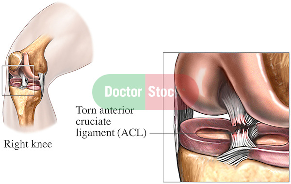 This medical exhibit series depicts an anterior cruciate ligament (ACL) tear injury to the right knee from an anteromedial (front, inside) view.