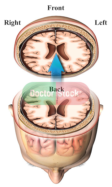 This stock medical image reveals an axial slice (cut-section) through the head and brain viewed from the underside,  inferior aspect, or more simply from the patients feet. It refelcts the typical film views as created from a CT or MRI.