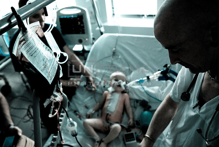 A member ICU tem seen monitoring child's state after succesful surgery.