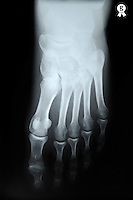 X-ray image of woman's (45) right foot (Licence this image exclusively with Getty: http://www.gettyimages.com/detail/97580219 )