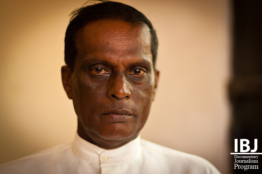 Galle, Sri Lanka: Victims of police brutality and abuse of power by public officials get together for a support meeting.<br /> <br /> M.H. Coitex - Was assaulted by police officers.  He was forced to watch as his son was beaten in front of him.