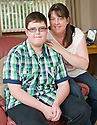 KEITH MULHOLLAND (17) FROM CROSSHILL WHO IS THE FIRST TEENAGE BOY IN SCOTLAND TO HAVE GROUND BREAKING HEART SURGERY PROCEDURE FOR A HEART DEFECT. HE IS PICTURED WITH HIS MUM LORRAINE (47).