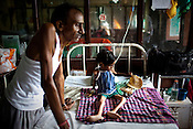 45 year old Surendra Sakhya is seen with his 6 year old neice, Kumkum who is extremely malnutritioned and also suffers from Cancer of the bone marrow in the pediatrics section of Maharani Laxmibai Medical College in Jhansi, Uttar Pradesh, India. The Indian government spends $1.4 billion a year - on programs that include weighing newborn babies, counseling mothers on healthy eating and supplementing meals, but none of this is yeilding results. According to UNICEF, some 48% of Indian children, or 61 million kids, remain malnourished, the clinical condition of being so undernourished that their physical and mental growth are stunted. Photo: Sanjit Das/Panos for The Wall Street Journal.Slug: IMALNUT