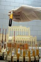 Centro donatori sangue della Croce Rossa Italiana. Blood donor center of the Italian Red Cross.Laboratorio per l' analisi del sangue. Laboratory analysis for blood test.....