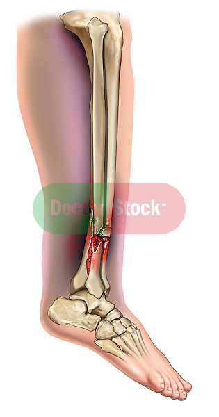 Tibia and fibular fracture with fibular dislocation