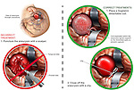Brain Surgery - Incorrect vs. Correct Surgical Treatments for Cerebral Aneurysm. The medical exhibits illustrates the correct and incorrect surgical procedures for treatment of a cerebral aneurysm.