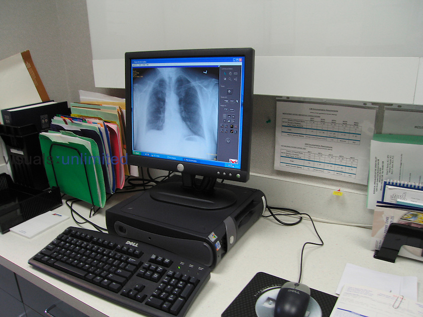 Shows a computer work station in a surgeon's office.  Displayed on the screen is a patient's xray
