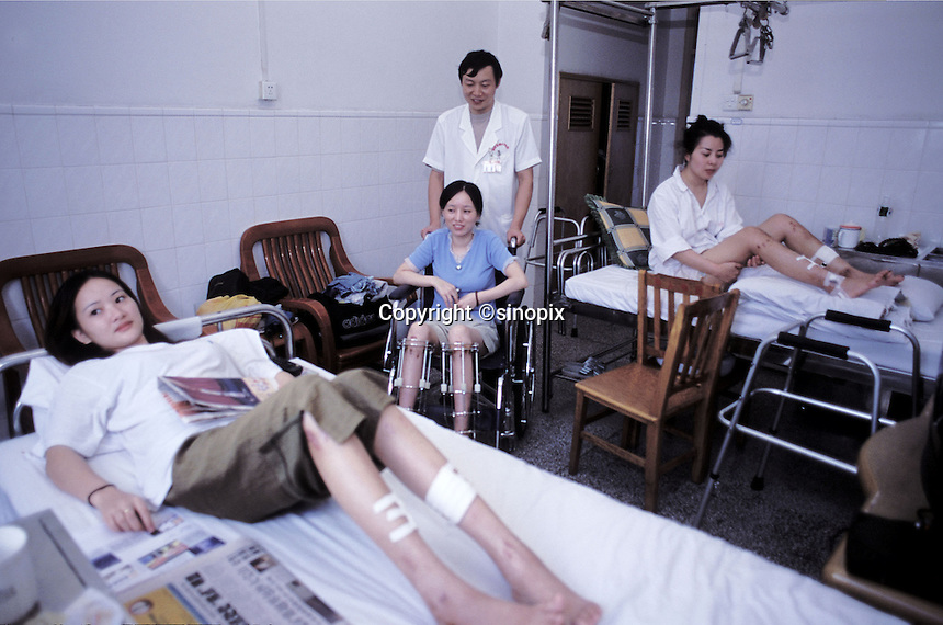 Soong Ling (blue cardigan) with leg lenthiening patients in a Guangzhou hospital. The are able to extend their leg length after a complicated operation which involves breaking their legs below the knee and inserting a steel pin. The legs are stretched using a metal cage. The patients must wait for around 6 months in bed...PHOTO BY SINOPIX
