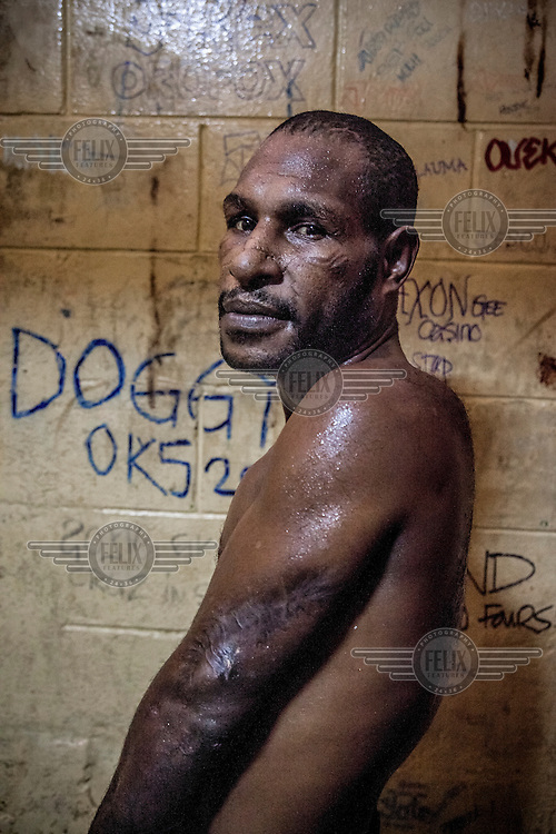 Bawi Marawe (40), in a prison cell at the Boroko Police Station, reveals a scar on his arm. In October 2012 Bawi was arrested for smoking marijuana in the street. During the interrogation policemen forced Bawi to pay them money to be released and then they broke his nose, cut his head, left arm and back with knives. He has spent three weeks in a cell. His lawyer and relatives were not allowed to contact him.