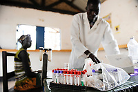 SOUTHERN SUDAN Rumbek , Diakonie health center , blood testing and Malaria treatment / SUEDSUDAN Rumbek , Diakonie Gesundheitsstation , Bluttest und Malaria Behandlung