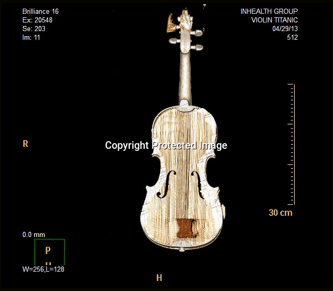 BNPS.co.uk (01202 558833)<br /> Picture: HAldridge/BNPS<br /> <br /> ****Please use full byline****<br /> <br /> The violins CT Scan from the hospital to prove it's authenticity. <br /> <br /> The violin played by the bandmaster on the Titanic as the ship was sinking is finally being auctioned for an estimated £400,000.<br /> <br /> The wooden instrument has been proven to be the one used by Wallace Hartley as his band famously played on to help keep the passengers calm during the disaster.<br /> <br /> Its existence and survival only emerged in 2006 when the son of an amateur violinist who was gifted it by her music teacher in the early 1940s contacted an auctioneers.
