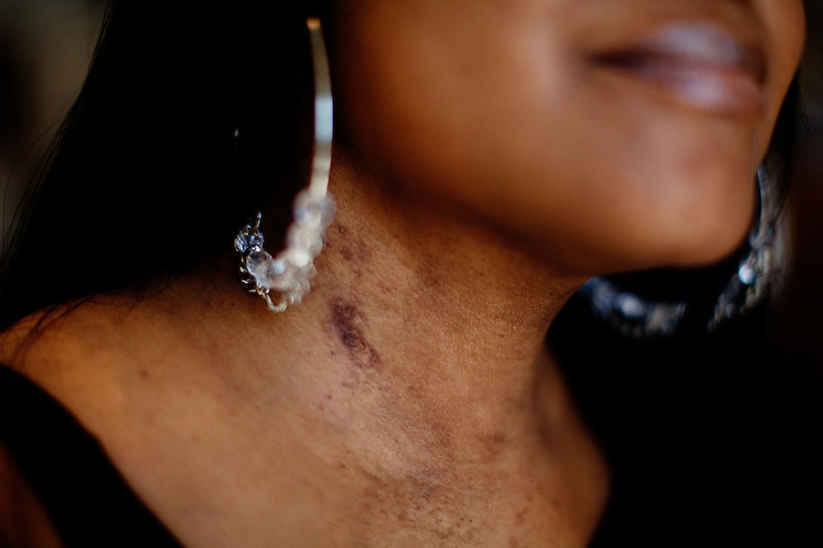 Los Angeles, California, May 9, 2012 - Biopsy scars on the neck of a portrait of artificial heart recipient Michelle Johnson during her visit to the Cedar-Sinai Heart Institute for a series of checkups and to see if she will qualify to be placed on the donor list for a new heart. Johnson received a heart transplant in December of 2010, but here body soon rejected it. She received the artificial heart in January of 2012 to buy her time so her doctors could study why her body built antibodies against the first heart. She is the first woman to have an artificial heart. Today she was told that she had placed back on the list for a new heart. The artificial heart is called CardioWest Artificial Heart, made by SynCardia. It is considered a bridge-to-transplant tool to help patients who would otherwise die, while waiting for a transplant.  Because it is able to be plugged into a portable unit with its own battery pack, patients are able to leave the hospital and lead somewhat normal lives. Johnson says though, ?Time is limited with the batteries. I can get my nails done, but that is about it. ?