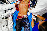 Emergency physicians conduct an acute trauma resuscitation of a young gang member, with three gunshot wounds, in the emergency department of a public hospital in San Salvador, El Salvador, 14 February 2015.