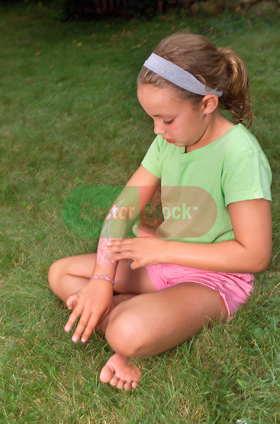 young girl sitting in grass applying calamine lotion to inflammation on arm