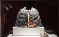 NO FEE PICTURES.1/2/12 A smokers lungs at the opening of The Human Body Exhibition—an all new exhibition featuring more than 200 full and partial real human body specimens, makes its world debut at The Ambassador Theatre this Spring. This incredible exhibition showcases carefully dissected specimens to provide a window into the miraculous way the body functions and gives visitors the opportunity to see exactly what lies beneath their skin. The Human Body Exhibition today Thursday 02 February, 2012 at The Ambassador Theatre for a limited engagement. Picture:Arthur Carron/Collins