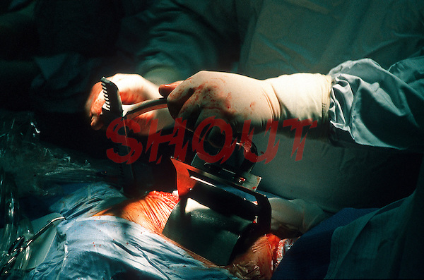 Surgeons performing heart transplant surgery in a hospital operating theatre. The surgeon is opening the patients chest with protractors. This image may only be used to portray the subject in a positive manner..©shoutpictures.com..john@shoutpictures.com