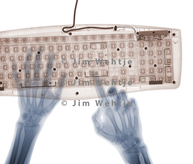X-ray image of hands and keyboard (color on white) by Jim Wehtje, specialist in x-ray art and design images.