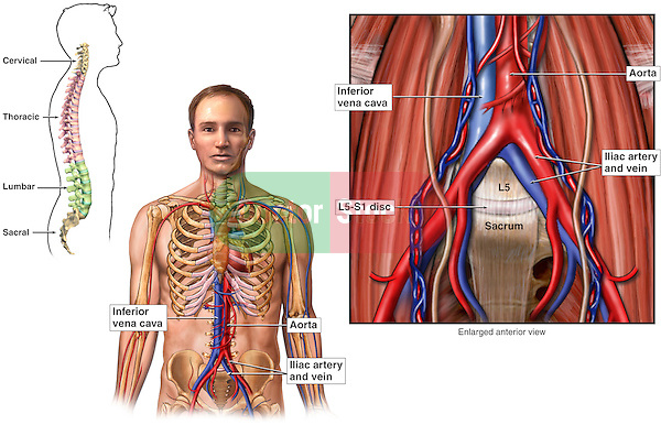 This full color stock medical exhibit illustrates the normal anatomy of the abdominal blood vessels. The inferior vena cava, aorta, ilac artery and vein, L5-S1 disc, and sacrum are labeled.