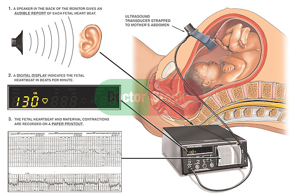 Depicts an external electronic fetal heart rate monitor with three types of output. Shows a speaker in the back of the FHRM providing an audible report of each fetal heartbeat. Shows the digital display indicating the heartbeats per minute. Displays a traditional paper printout with heartbeat and maternal contractions. Shows an ultrasound transducer strapped to a cut-away view of the pregnant mother's abdomen.