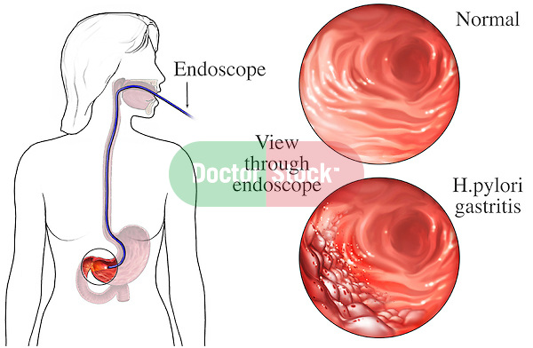 This medical illustration depicts the correct placement in an Upper GI endoscopy. A magnified inset of the duodenum and stomach is included. H. pylori gastritis can be seen in the stomach.