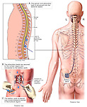 Spinal Cord Stimulator with Battery Pack. This medical illustration series shows the implantation of an epidural stimulator lead and battery pack for relief of chronic low back pain in a male patient. it features multiple views describing placement of the lead through a lumbar laminectomy incision at L1-2, advancement of the lead superiorly to the T10 level and implantation of the battery pack into the left buttock tissues.