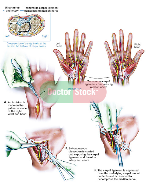 Graphic depiction of bilateral carpal tunnel syndrome surgery. The first two illustrations show the transverse carpal ligament compressing the median nerve, along with the location of the ulnar nerve and artery. The first surgical illustration shows the initial incision. The second surgical illustration shows dissection to expose the ulnar artery and nerve. The third surgical illustration shows resection of the carpal ligament to relieve the pain.