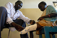 Orthopedic technician Rafael Amodoi creates a plaster cast of landmine victim Sarah Oyero, 8, at the orthapedic clinic at Gulu Hospital. The cast was used to create a prosthetic leg for the child. AVSI of Italy funds the clinic which creates prosthetic limbs onsite in Gulu for amputees. (Rick D'Elia)