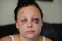 Pictured: Jenna Thomas after she was attacked<br /> Re: A 22 year old mum says she is &ldquo;terrified to go home&rdquo; after she says she was strangled and severely beaten by her partner of four months.<br /> Jenna Louise Thomas, of Crindau, Newport, says the prolonged attack by her partner, Jamie Webber, on Sunday night was witnessed by her four-year-old son.<br /> She has been left with two black and bloodshot eyes and a swollen face.<br /> Miss Thomas, who is also known as Jenna Francis, says Jamie Webber is now on the run.<br /> Gwent Police confirmed that they are actively looking for him and have warned people not approach him.