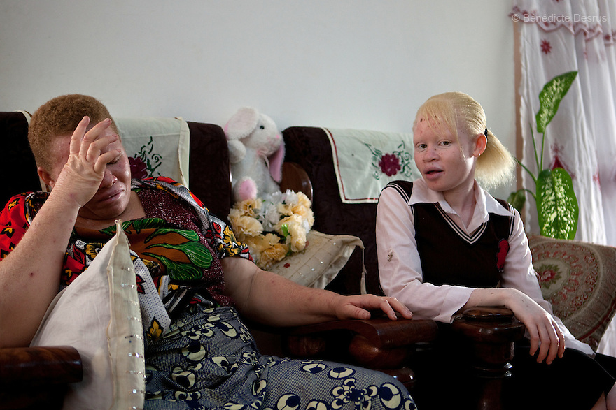 10 june 2010 - Dar Es Salaam, Tanzania - Teresa January (L) and her daughter (R). Samuel Herman Mluge (51yrs) an albino rights activist in Tanzania and his wife Teresa January (46 yrs) have five children, all with albinism. Albinism is a recessive gene but when two carriers of the gene have a child it has a one in four chance of getting albinism. Tanzania is believed to have Africa' s largest population of albinos, a genetic condition caused by a lack of melanin in the skin, eyes and hair and has an incidence seven times higher than elsewhere in the world. Over the last three years people with albinism have been threatened by an alarming increase in the criminal trade of Albino body parts. At least 53 albinos have been killed since 2007, some as young as six months old. Many more have been attacked with machetes and their limbs stolen while they are still alive. Witch doctors tell their clients that the body parts will bring them luck in love, life and business. The belief that albino body parts have magical powers has driven thousands of Africa's albinos into hiding, fearful of losing their lives and limbs to unscrupulous dealers who can make up to US$75,000 selling a complete dismembered set. The killings have now spread to neighbouring countries, like Kenya, Uganda and Burundi and an international market for albino body parts has been rumoured to reach as far as West Africa. Photo credit: Benedicte Desrus