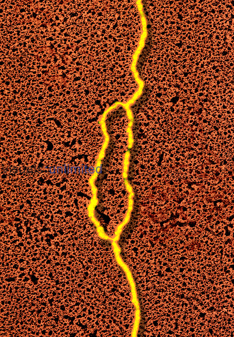 DNA replication from a HeLa cell at the bubble stage.  TEM X20,000