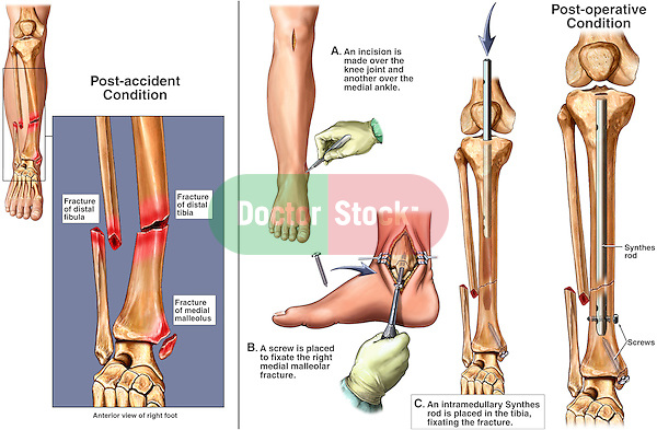 Fractured (Broken) Ankle with Surgical Fixation. This surgical exhibit reveals the following images:.1. Orientation and pre-operative view of the right lower leg revealing fractures to the distal tibia and fibula. 2. Incision into the leg and ankle, 3. Placement of screws and an intramedullary rod into the tibia. 4. Final post-operative view of the fracture hardware in place.